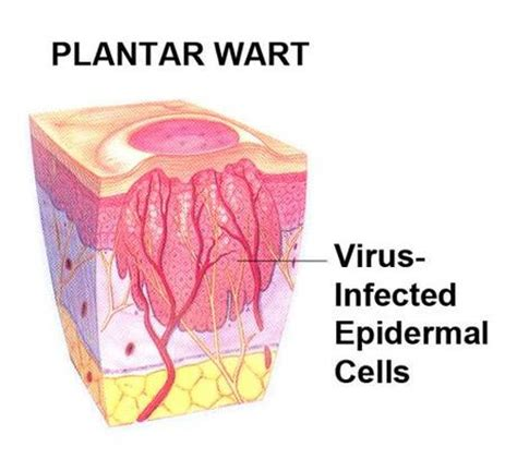wart cross section how to get rid of plantar warts in a few weeks dark