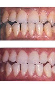 vancouver laser teeth whitening pure light laser clinic