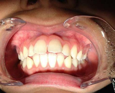 apparecchio mobile apparecchio ortodontico mobile fisso e bite dentist