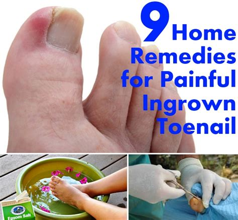 infected ingrown toenail home remedies