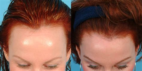 hairline implants female hairline lowering 183 bauman medical