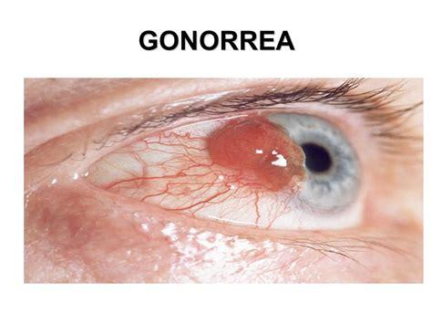 imagenes de enfermedades asombrosas enfermedades de transmisi 211 n sexual ppt descargar