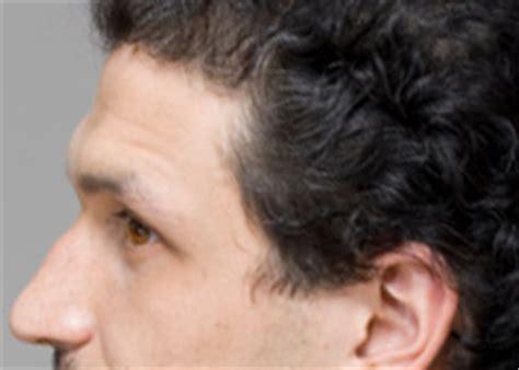 hairstyles for sloped forehead men how to feminize your face mtf transgender crossdressing