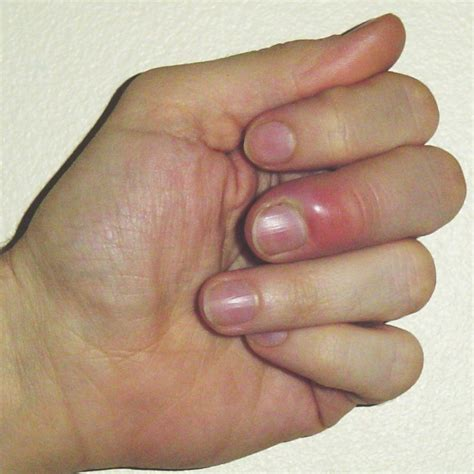 paronychia home remedies take care of finger infection