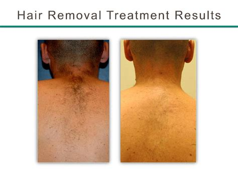 laser hair removal south jersey hairstyle gallery permanent laser hair removal bergen county nj hair