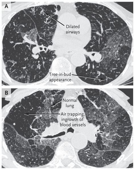 mosaic pattern obliterative bronchiolitis obliterative bronchiolitis nejm