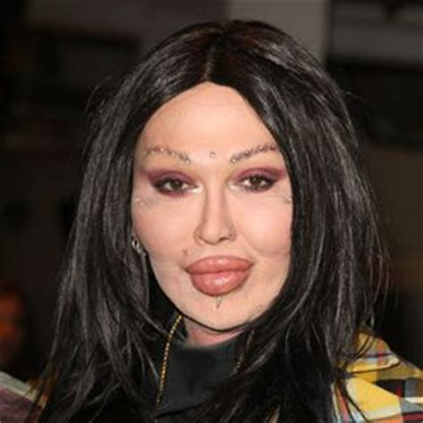 Ill Plastic Surgery Hollyscoop by Shocking Plastic Surgery Disasters