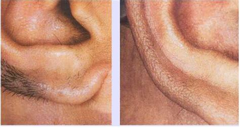 the manliest way to remove your ear hair gq nose and ear hair removal the best hair removal