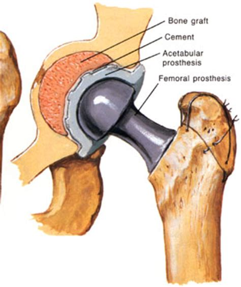 hip replacement total hip replacement surgery rehabilitation complications