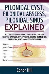 pilonidal cyst home treatment pilonidal cyst