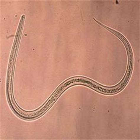 how to get rid of hookworms in puppies how to get rid of hookworms how to get rid of stuff