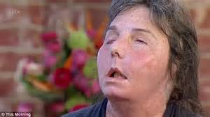 carmen tarleton mother of two who had a face transplant after ex husband