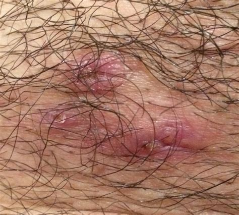 infected ingrown hair in groin area the gallery for gt pimples on shaft