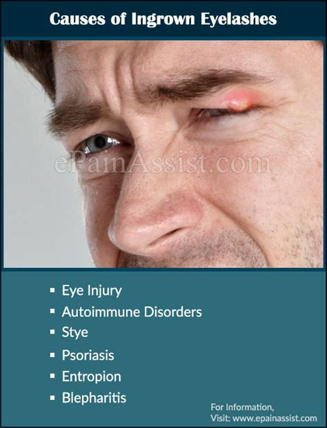 Has Disfigured Eyelids by What Causes Ingrown Eyelash What Is Its Treatment