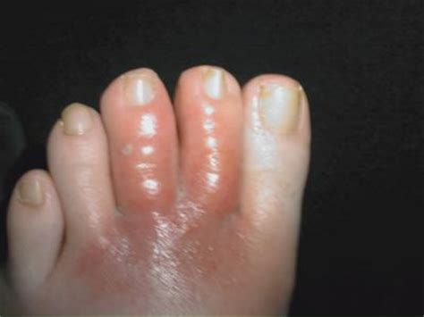 Swollen Section by Related Keywords Suggestions For Swollen Toe