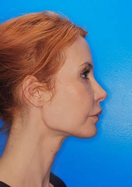 Facelift Vorher Nachher by Das Facelift Zur Verj 252 Ngung Fortschreitender Hautalterung