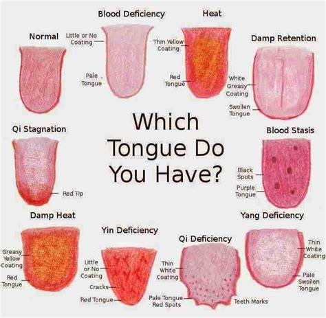 healthy colors what the color of your tongue says about your health