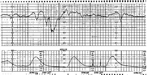 pattern heart rate early decelerations fetal heart rate images