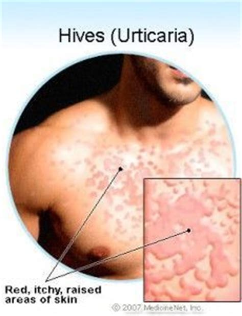 c section incision itch relief 1000 images about hives on pinterest urticaria home