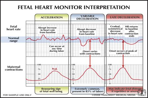 Early Late early vs late deceleration search acom ob gyn