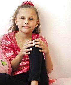 Juvenile Arthritis Arthritis And Great Christmas Gifts On