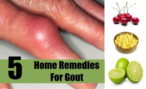 5 home remedies for gout treatments cure for