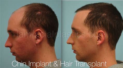 what should i expect when getting a chin length short wavy bob chin augmentation dallas chin implants plano tx