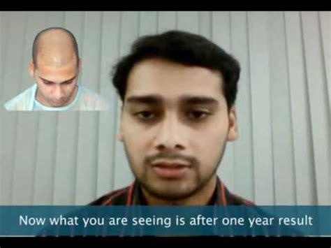 Hair Transplant India Delhi Mumbai Youtube | hair transplant india delhi mumbai youtube