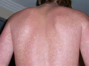 itchy rash around nails