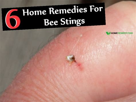 6 effective home remedies for bee stings diy find home