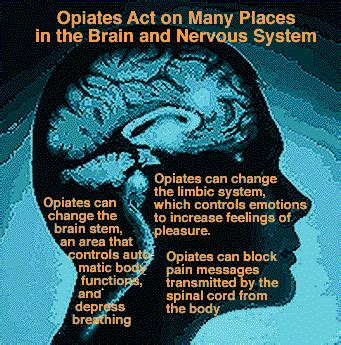 Dangers Of Detoxing From Opiates by Opiate And Its Dangers Opiate Withdraw Opiate Withdraw
