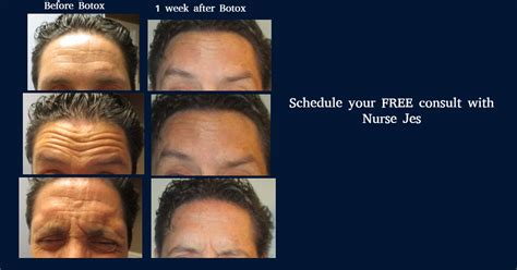 tattoo removal gainesville skin care treatment results