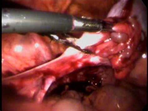 cyst burst ruptured ovarian cyst with haemoperitoneum
