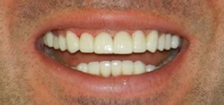 clinica dental soriano dentist  marbella centre