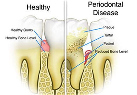 How Big Is The And Other Gum Questions by Will Gum Disease And Pockets Go Away Traceybell