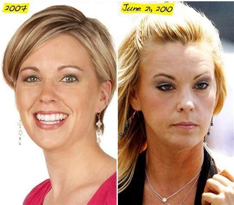 Ill Plastic Surgery Hollyscoop by 1000 Images About Cosmetic Procedures On