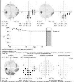 vertex conversion chart optometry pinterest glasses optometry  eyes