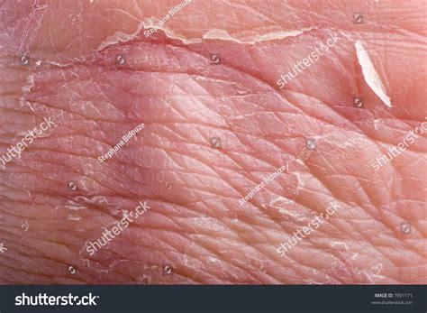 macro eczema on grip skin stock photo 7891171 macro of eczema on grip with skin peeling stock photo 7891171