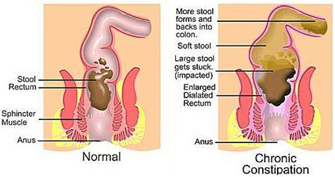 Stool Gas And Bloating by How To Cure Constipation With Exercises In 21 Days