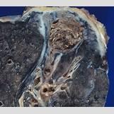 Histoplasmosis Eye | 474 x 417 png 160kB