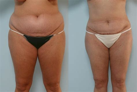 c section tummy tuck combo tummy tuck in houston vitenas cosmetic surgery