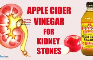 Apple Cider Vinegar Kidney Detox by 5 Remedies For Kidney Infection My Health Tips