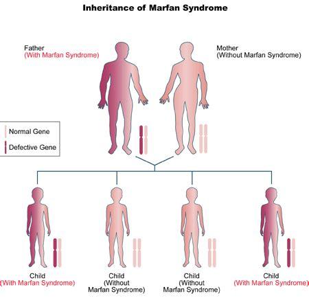 pattern dystrophy eye wiki marfan syndrome