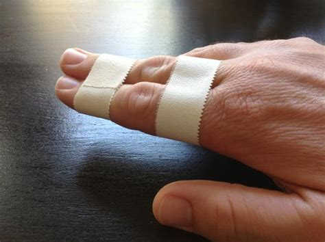 how to finger types of splints commonly used bone and spine