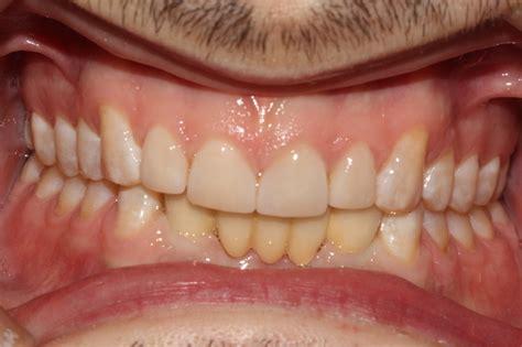 smile gallery essex street farm dental