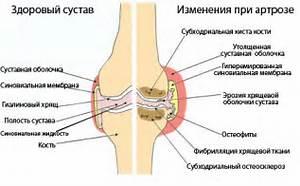 лечение сустава пальца ноги