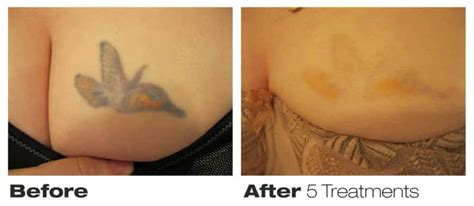 tattoo removal saskatoon precision laser removal toronto on 76 richmond