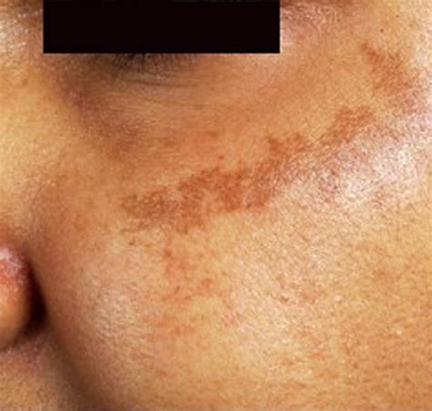 spots on skin brown spots on skin pictures causes home remedies treatment