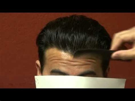 how to style hair to hide hair transplant scar hair transplant fue 1 year follow up horseshoe hair loss