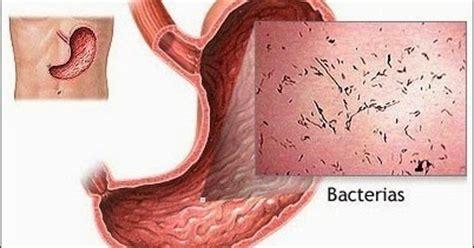 Obat Untuk Gastroenteritisobat Untuk Flu Lambungobat Infeksi Lambung obat gastroenteritis karena infeksi agen qnc jelly gamat terbaik